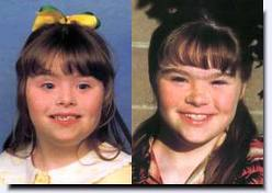 cosmetic surgery is not an answer to down syndrome Very few families of young children with down syndrome choose to look into the option of plastic surgery to reduce facial characteristics in hopes that their children find better opportunities and less prejudice in school and community programs.